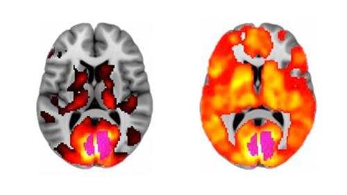 scan cérébral lsd